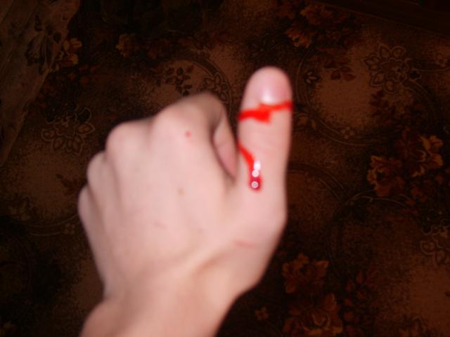 Если во время маникюра вам поранили палец